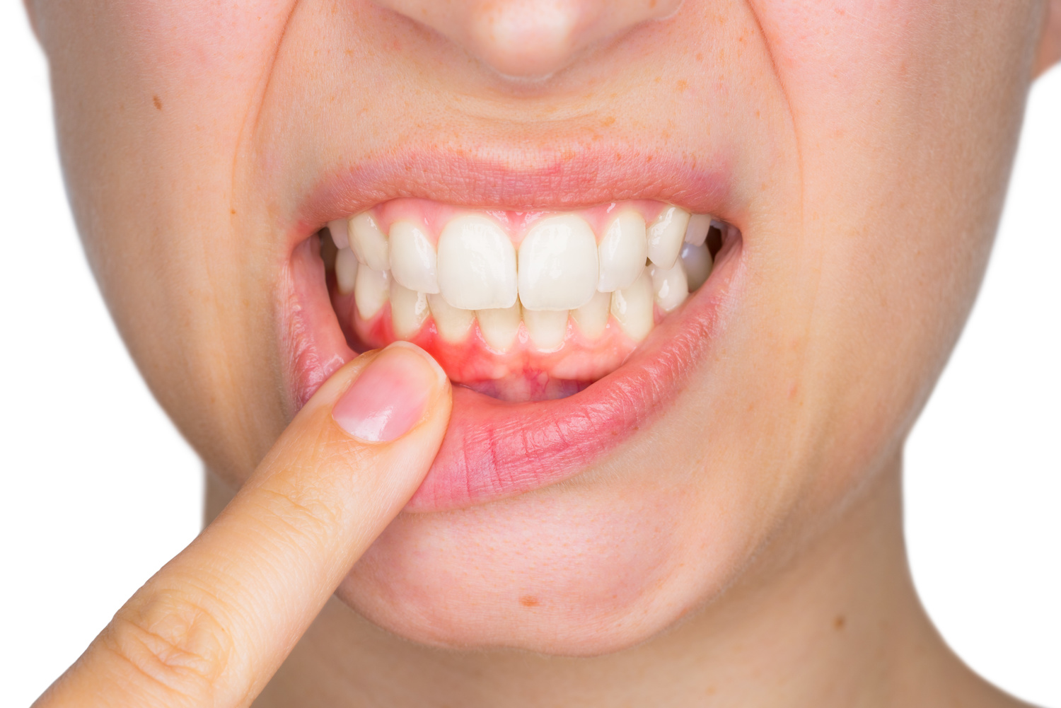 Cut on Gums – How to Treat and Prevent It?